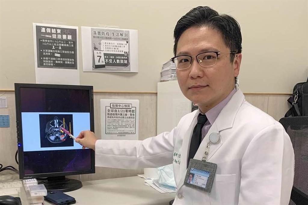 中醫大新竹附設醫院耳鼻喉科主任王堂權,以「中耳微創內視鏡併上隱窩乳突鑿開手術」及「耳咽管微創內視鏡手術」,改善美國男童的聽力。(羅浚濱攝)