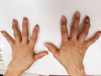 回家看看媽媽的手 若手指變形僵硬 別輕忽快就醫