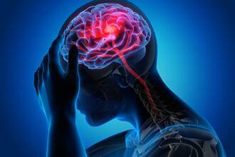 大腦各部位急性中風症狀大不同 小心慢性致殘